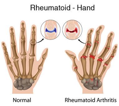 Treatment of Newly Diagnosed Disease in Rheumatoid Arthriti | Robert Duke | Scoop.it