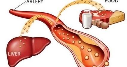 Máu nhiễm mỡ là gì - Nguyên nhân và triệu chứng? ~ Rối loạn mỡ máu | Kiến thức sức khỏe dịch vụ | Scoop.it