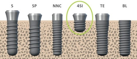 New Straumann implants reduce treatment invasiveness | Dental Implant and Bone Regeneration | Scoop.it