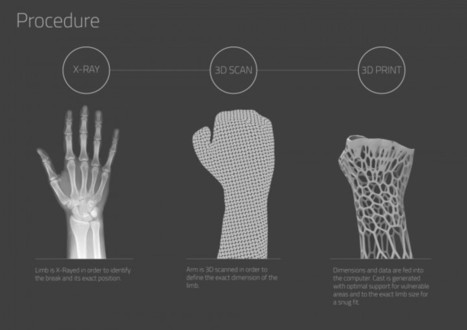 Un plâtre imprimé en 3D - La boite verte | Actu de la Réalité Augmentée et de l'impression 3D | Scoop.it