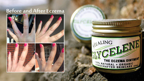 What is Eczema? How to Treat Eczema Naturally? | Mark Senior | Scoop.it
