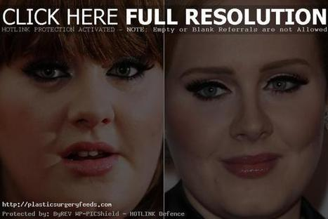 Adele Plastic Surgery Before and After Nose and Throat | Plastic Surgery Before and After Photos | Scoop.it