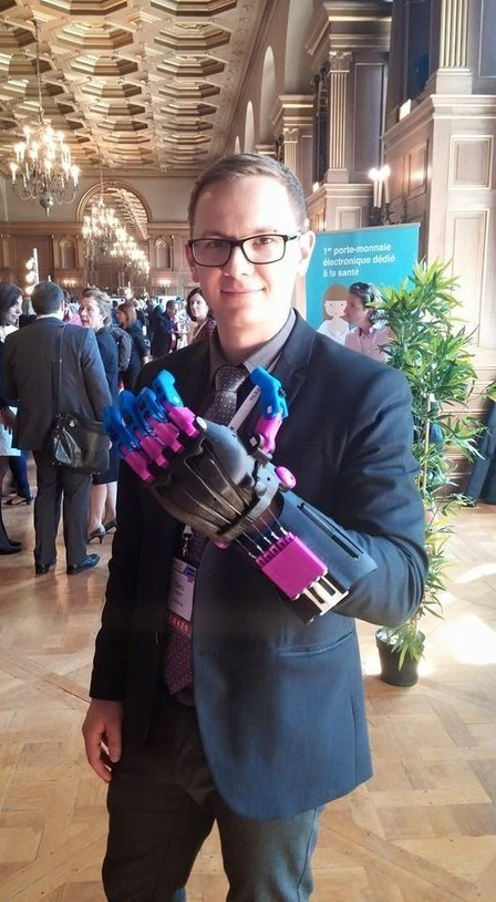 e-NABLE: Cheap Prosthetics For Those In Need #doctors20   Doctors 2.0 & You   Scoop.it