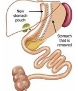 Gastric Sleeve Surgery, Gastrectomy - Sydney, Australia | gastric bypass surgery | Scoop.it