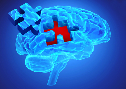 Increased Chances for Early Detection of Alzheimer's Disease - Drug Discovery & Development | Social Neuroscience Advances | Scoop.it