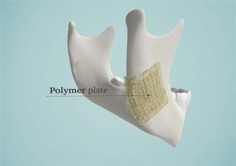 3D printed bioceramic implants for bone repair to enter market soon | 3D_Materials journal | Scoop.it