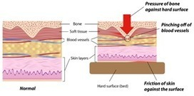 What You Ought To Know About Bed Sores - Tucson Personal Injury Lawyer | Personal Injury | Scoop.it