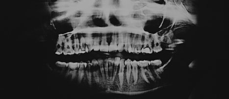 Are Dental X-Rays Safe? | NutritionFacts.org | Plant Based Nutrition | Scoop.it