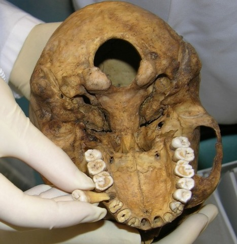 Mummy Teeth Record Climate Data - Archaeology Magazine   Anthropology, Archaeology, and History   Scoop.it