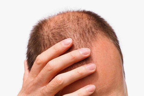 How to Medically Address Hair Loss? - Singapore Aesthetic and Hair Transplant Clinic | Hair Transplant News | Scoop.it