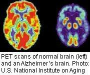 Link Seen Between Hardening of Arteries, Alzheimer's Plaques | Antiques | Scoop.it