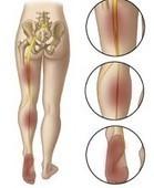 Sciatic Nerve Floss | sciatica treatment with exercises bloomington il chiropractor | Scoop.it