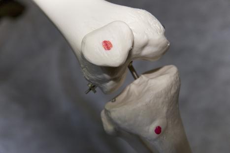 La rodilla del corredor: Condropatía rotuliana | alimentació | Scoop.it