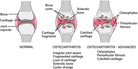 MOST COMMON TYPES OF BONE DISORDER   Healthy Fitness Tips   Scoop.it