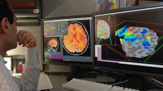 Identifying Alzheimer's using space software   UnspeakableThingsFinallySpoken.com - Curated Links   Scoop.it