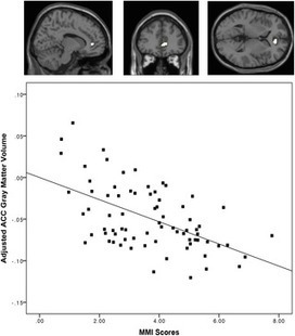 Higher Media Multi-Tasking Activity Is Associated with Smaller Gray-Matter Density in the Anterior Cingulate Cortex | Brainology | Scoop.it