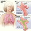 Bronchitis Symptoms, Causes, Treatment, Prevention   Heath and Quotes   Scoop.it