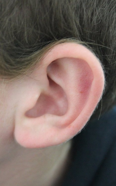 Hearing Loss May Predict Alzheimer's Disease | Dementia | Scoop.it