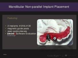 20 mandibular non parallel implant placement