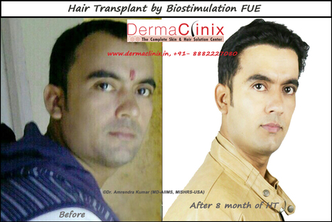 Hair Transplant An Innovation Technology Of Medical Science | DermaClinix - The Complete Skin & Hair Solution Center | Scoop.it