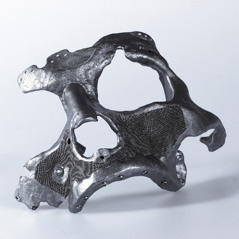 Autodesk Within is a Cutting Edge Software for Medical 3D Printing | a3 _ research | Scoop.it