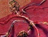 Una terapia española impide la metástasis del cáncer al pulmón   Novedades sobre la Salud y Medicina   Scoop.it