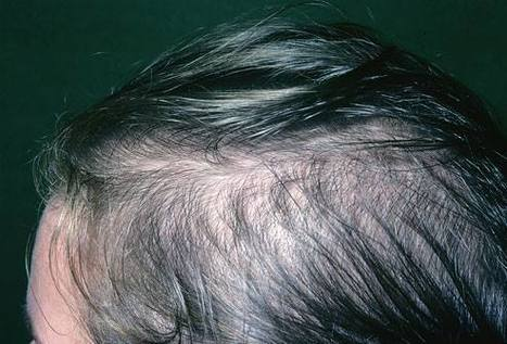 Is your hair falling out? | Hair Transplantation | Scoop.it