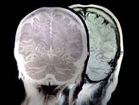 Scoperto da dove nasce e perché si diffonde l'Alzheimer | Scientific life | Scoop.it