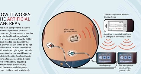 Next Big Future: Artificial pancreas likely to be available by 2018 | WELLNESS | Scoop.it