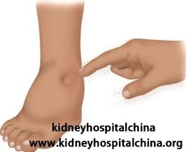 How to Control Swelling Effectively in Kidney Failure | kidney disease | Scoop.it