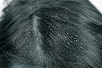 How To Control Dandruff Through Home Remedies Without Any Side Effects? | Dandruff | Scoop.it