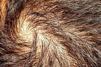 Follicular Unit Extraction Surgery: Getting Back Your Crowning Glory | BajaHairCenter | Scoop.it
