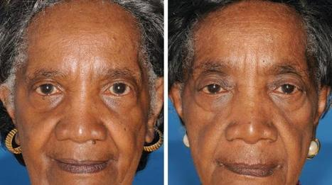 How Does Smoking Effect Your Appearance | Life Style | Scoop.it