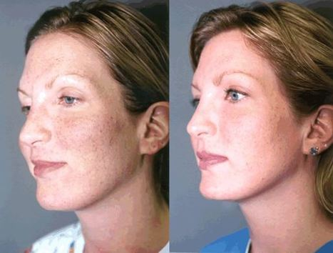 Take Care of Wrinkles with Facial Resurfacing in Maryland by John Millers | Best website pages | Scoop.it