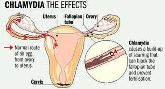 Chlamydia and Pregnancy - Babywoop.com | Pregnancy Problems and Treatment | Scoop.it