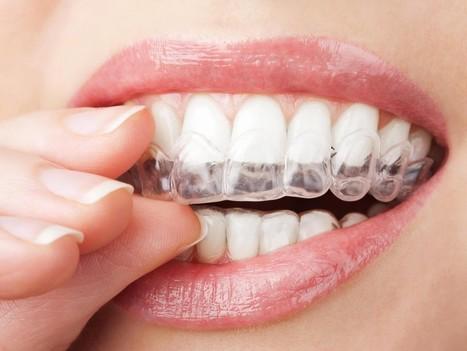 Ortodoncia Invisible en Málaga | Clínica Dental Malaga | Dentista Malaga | Crooke & Laguna | Scoop.it