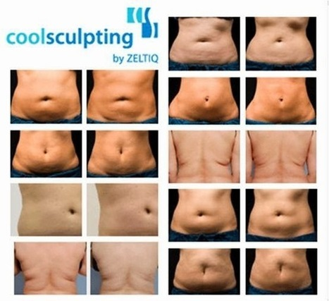 Cool Sculpting Thailand | At Urban Beauty Thailand | Scoop.it