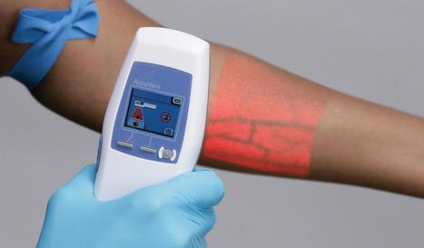 Vein Scanners: Examples For Disruption - The Medical Futurist | New Technology | Scoop.it
