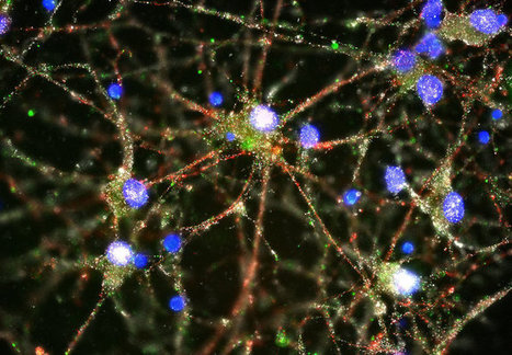 Scientists Move Closer to Understanding Schizophrenia's Cause | enjoy yourself | Scoop.it