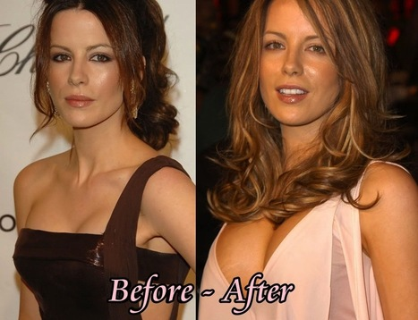 Kate Beckinsale Plastic Surgery: Just Rumors or True ? With Pictures | PlasticSurgeryPics.org - All About Celebrities | Scoop.it