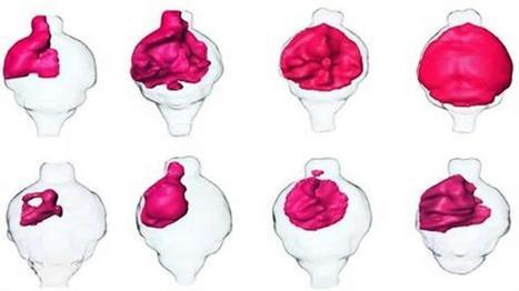 New Computational Strategy Finds Brain Tumor Shrinking Molecules | Applied Neuroscience | Scoop.it