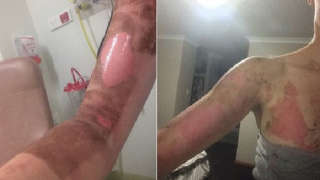 Mum's terrible burns after Thermomix bursts open | Crisis prevention | Scoop.it