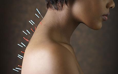 Japanese researchers show that acupuncture can improve skeletal muscle atrophy | Carriage Driving Radio Show | Scoop.it