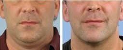 How Much is a session of Thermage ?   Skin Tightening Precision Aesthetics MD   Thermage   Scoop.it