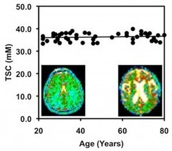 Cell Density Remains Constant as Brain Shrinks With Age | Biomedical Beat | Scoop.it