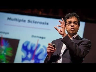 Can Stem Cells Repair the Damaged Brain? | Stem Cells & Tissue Engineering | Scoop.it