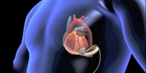 Come ridurre il rischio di malattie cardiache dell'uomo   uomo   Scoop.it