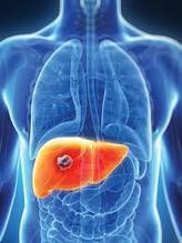 Obat Penghancur Tumor Di Hati Tradisional | Warung Kesehatan Herbal | healt | Scoop.it