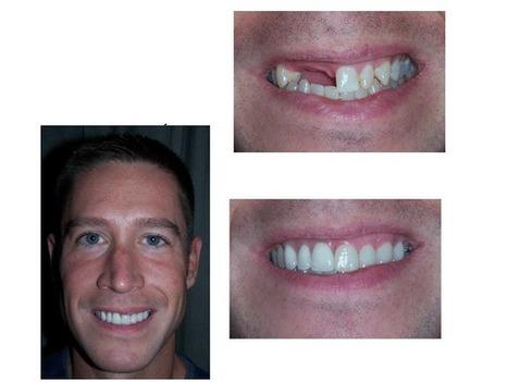 Cosmetic Dentistry Atlanta, Cosmetic Services Atlanta, Cosmetic Care Atlanta, Dentists Atlanta, Cosmetic Dentists Atlanta, | Cosmetic-services-atlanta-ga | Scoop.it