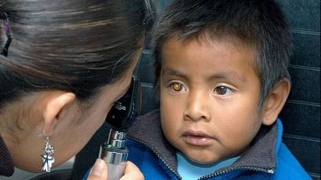 Hay 39 millones de ciegos en el mundo - TabascoHOY.com   Oftalmologia en Barcelona Dr. Cabot   Scoop.it
